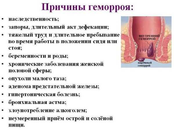 как можно остановить кровь при геморрое
